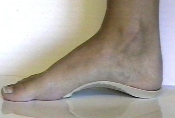 PP Contour Orthotic
